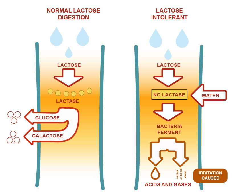 Cause of Lactose Intolerance